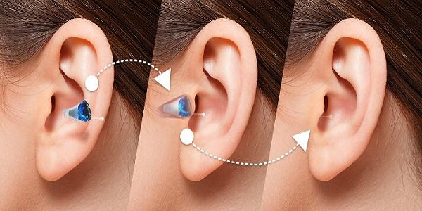 An Image Denoting The Additional Parts of Hearing Aids.