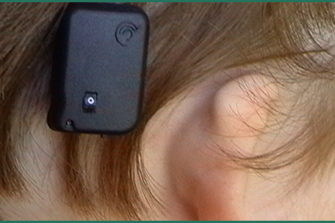 Astounding Technology Of Invisible Hearing Aid.